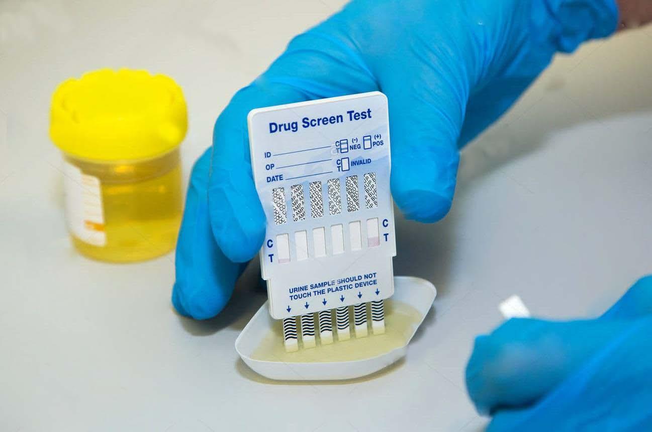 ONE SCREEN DRUG TEST (UYUŞTURUCU TESTİ) - DAMLATIP
